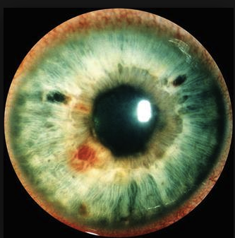 Occular syphillis can have red spots on iris.