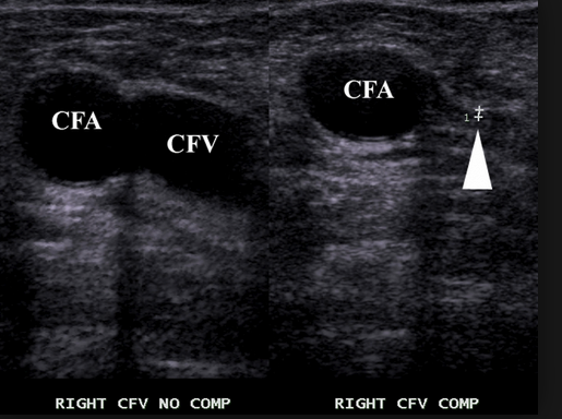 Common femoral vein that compresses normally