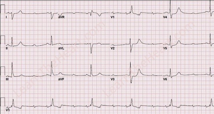 EKG showing 3rd Degree Heart Block on ED presentation