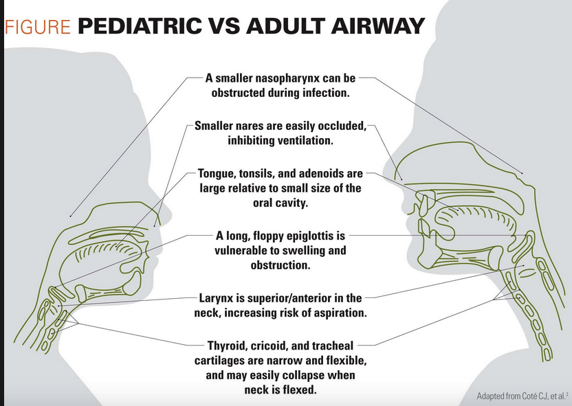 The anatomic differences between the Pediatric and Adult airways.  The narrowest point in the pediatric airway is the cricoid ring as opposed to the adult airway in which the cords are the narrowest point.