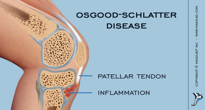 Osgood-Shlatter disease is a traction apophysitis. The disease is self-limited. Treatment is NSAID's, ice and continued activity if pain can be controlled.