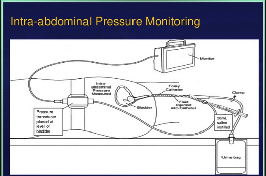 Technique of measuring bladder pressure. Patient needs to be flat.