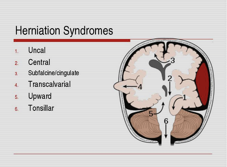 6 Herniation Syndromes
