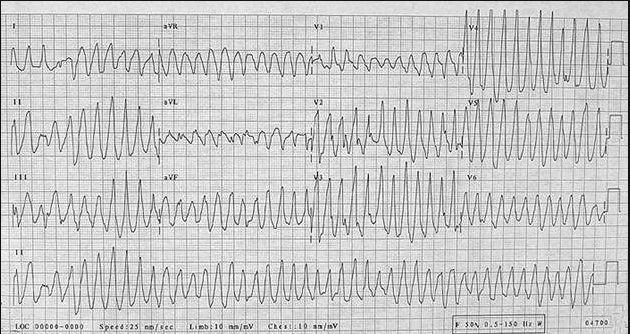 Patient is pulseless with polymorphic VT