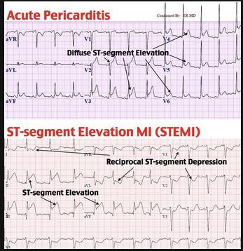 Steps to distinguish pericarditis from STEMI:   Is there ST depression in a lead other than AVR or V1?  This is a STEMI   Is there convex up or horizontal ST elevation?  This is a STEMI   Is there ST elevation greater in III than II?  This is a STEMI   Now look for PR depression in multiple leads… this suggests pericarditis (especially if there is a friction rub!)  From Life in the Fast Lane