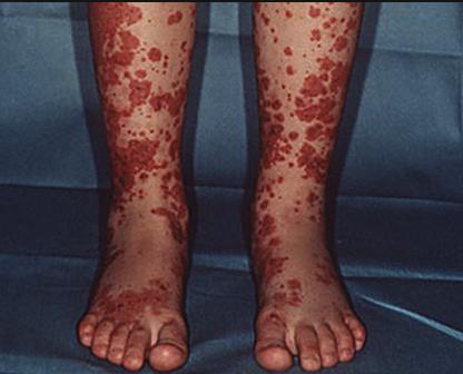 HSP rash