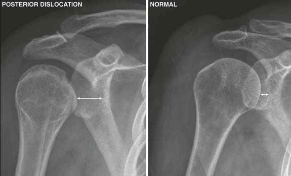 With posterior dislocation, humeral head looks like golf ball on a tee.  With anterior dislocation, humeral head looks like a golf club head.