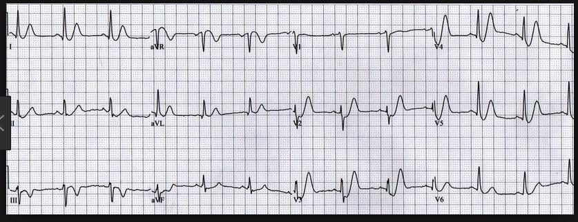 DeWinter's T waves anterolaterally  STEMI equivilent