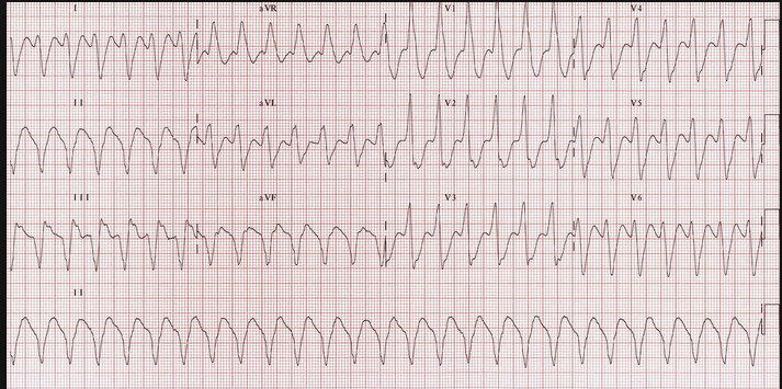 Patient had run of stable V-tach in ED treated with Amiodarone