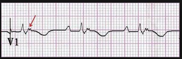 Epsilon Wave specific for arrythmogenic right ventricular cardiomyopathy.