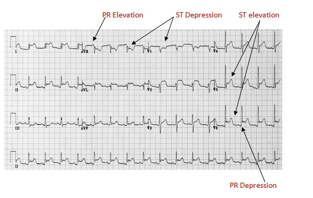 Pericarditis EKG. There is diffuse ST elevation and PR depression.  AVR has the opposite changes with ST depression and PR elevation.  If you see localized ST depression in the inferior, anterior, or lateral leads that  is not c/w pericarditis and needs to be strongly considered for STEMI criteria.