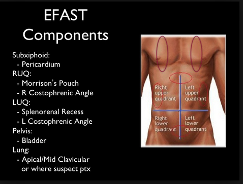 E-FAST adds lung windows to the traditional FAST to look for pneumothorax.