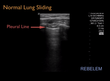 Looking for sliding of pleural line is critical to identify pneumothorax.  With pneumothorax, the pleural line does not slide.