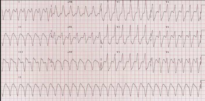 V-tach.   Harwood comment you know this is V-tach based on NorthWest axis (down in I and AVF) and QRS >140 ms.