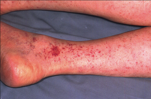 The rash of  Rocky Mountain Spotted Fever starts on the ankles and wrists and moves toward the trunk.  Fever precedes the rash by a few days.