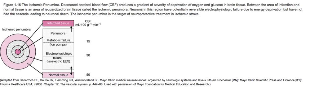 CBF correlated with degree of ischemia