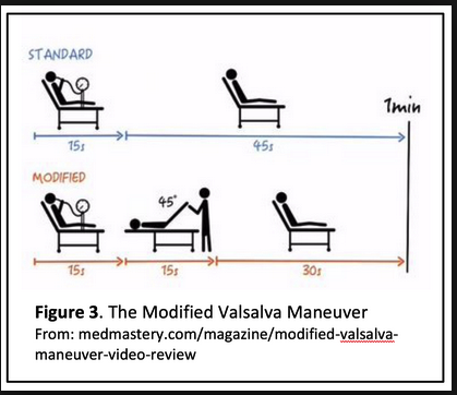 Try this modified valsalva maneuver to terminate SVT. It works 25% of the time.