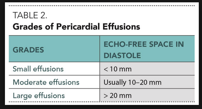 You can measure the width of the pericardial fluid to grade the severity of a pericardial effusion. More than a centimeter (10mm) is significant.