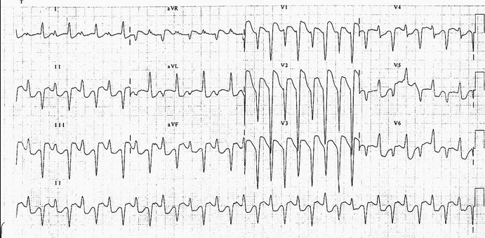 Bidirectional ventricular tachycardia which is highly specific for digoxin toxicity