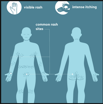Typical locations of scabies rash