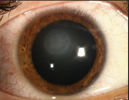 Disciform HSV keratitis