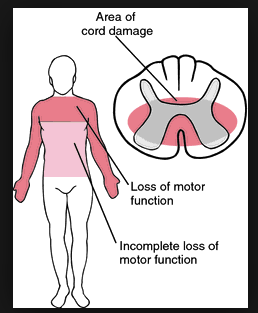 Signs of Central Cord Syndrome