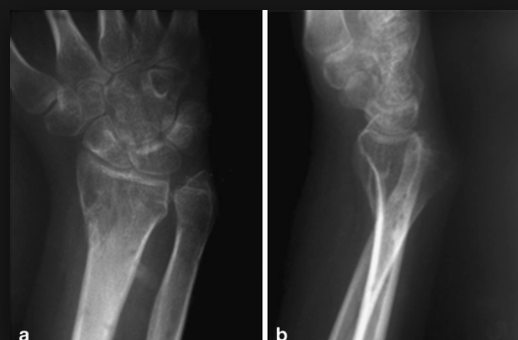 Distal Radial-Ulnar Joint (DRUJ) dislocation should be suspected with any widening of the space between the distal radius and ulna. The lateral view shows to distal ulna displaced posterior to the radius.