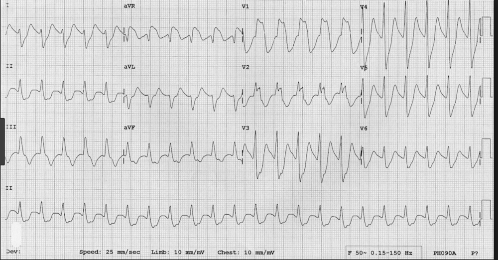 If you see this EKG in the setting of an overdose, think TCA and give a trial of NABicarb. If it works, it will narrow the QRS complex and narrow the terminal R wave of AVR. A Wide R wave in AVR and wide QRS complexes generally are clues on the EKG to a TCA overdose.