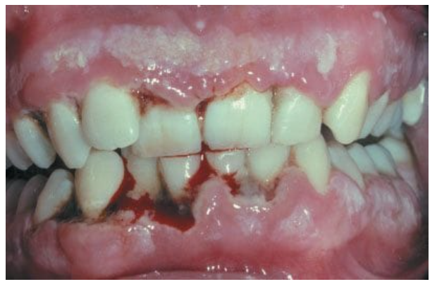 Vincent angina is a polymicrobial infection, typically limited to the gingiva, and characterized by foul breath, cervical lymphadenopathy, and fever. In immunocompromised individuals, it may extend to include a necrotic gray pseudomembrane on the pharynx. (Current Diagnosis and Treatment Emergency Medicine)