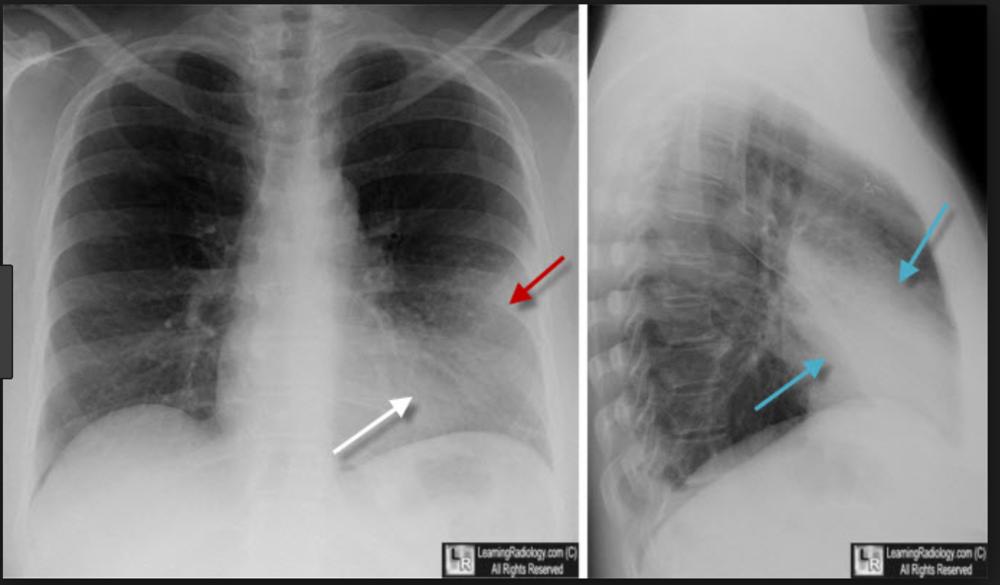 Lingular pneumonia. If the left heart border is obscured, it is due to lingular pneumonia. If the left diaphragm is obscured it is due to left lower lobe pneumonia or atelectasis.