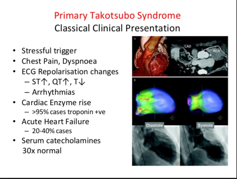 "Catecholamine surge seems to be the pathophysiologic pathway of Takotsubo Cardiomyopathy. The LV apex is most sensitive to catecholamines. Takotsubo's causes apical ballooning in response to a catecholamine surge.  Features of takotsubo cardiomyopathy.  Chest pain and shortness of breath after severe stress (emotional or physical)  Electrocardiogram abnormalities that mimic those of a heart attack  No evidence of coronary artery obstruction  Movement abnormalities in the left ventricle  Ballooning of the left ventricle  Recovery within a month   What is it?   Takotsubo cardiomyopathy is a weakening of the left ventricle, the heart's main pumping chamber, usually as the result of severe emotional or physical stress, such as a sudden illness, the loss of a loved one, a serious accident, or a natural disaster such as an earthquake. (For additional examples, see ""Stressors associated with takotsubo cardiomyopathy."") That's why the condition is also called stress-induced cardiomyopathy, or broken-heart syndrome. The main symptoms are chest pain and shortness of breath. (Online Harvard Website)"