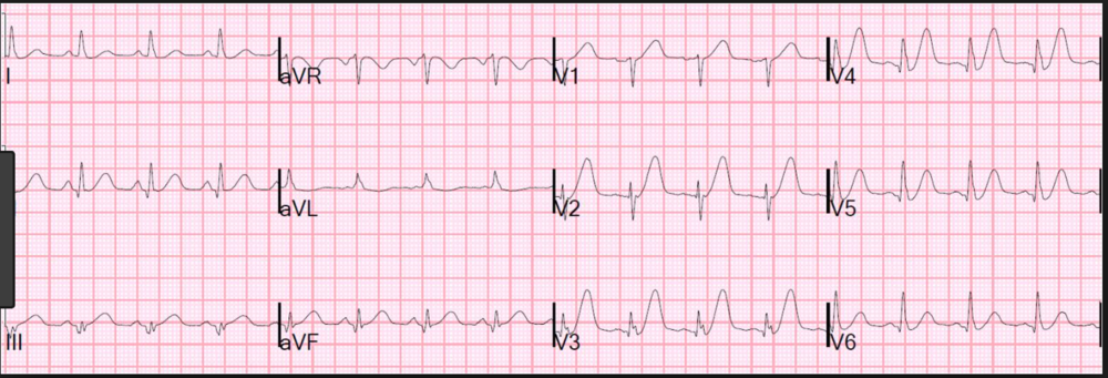 Beware the Hyperacute T wave in the setting of chest pain. Hyperacute T waves may not always have ST elevation. The real key is the T wave's size in relation to the QRS complex. This EKG was from a patient who went on to develop ST elevation and V-fib arrest. If you are suspicious of hyperacute T waves, get frequent repeat EKG's to identify ST elevation or other evolution.