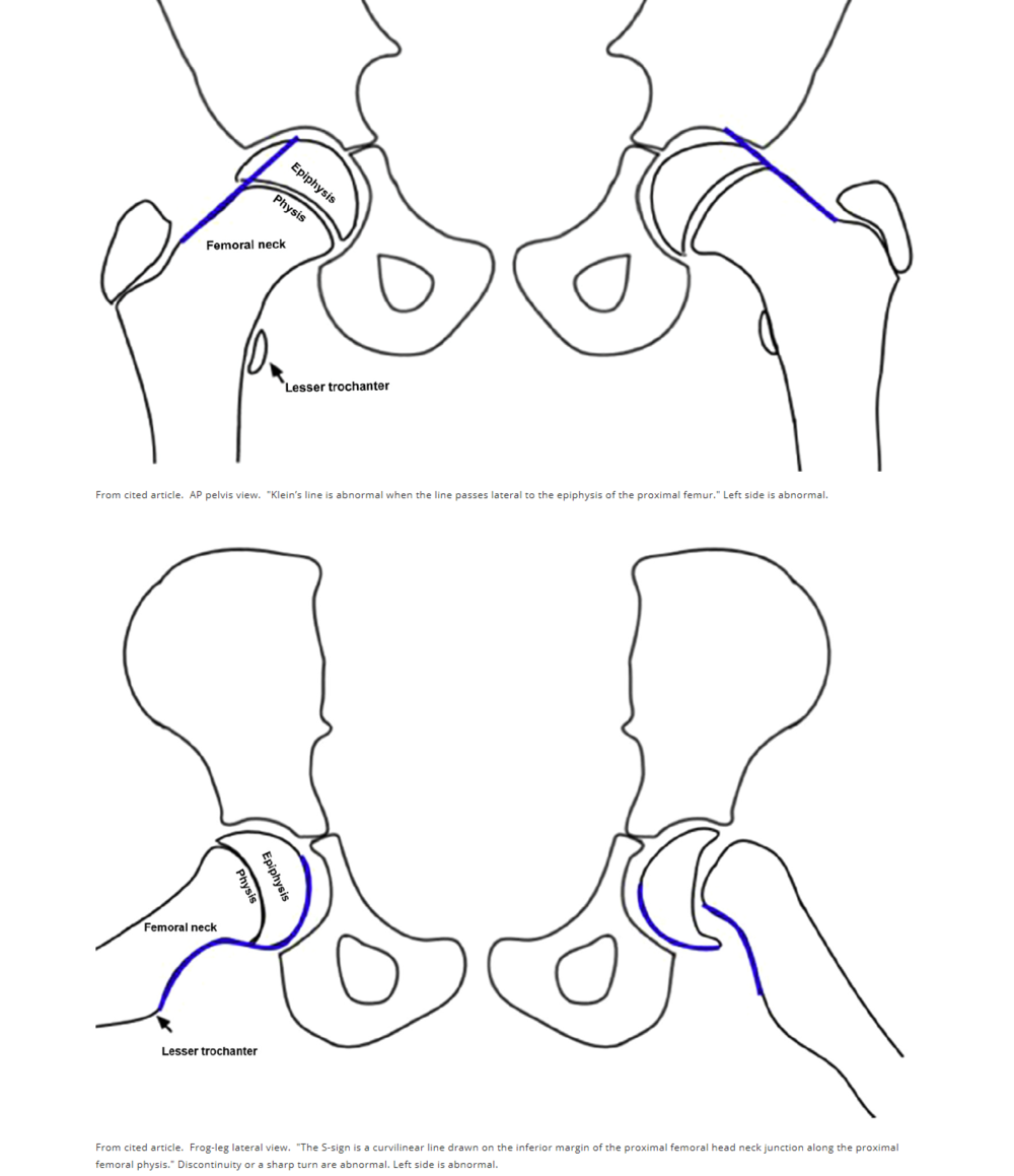 The S sign if normal is smooth with no step-off or sharp turns. An abnormal S sign has either a step off or an abrupt turn or buckle.   Klein's line and S-sign  A heterogeneous group of 20 orthopedic surgeons, radiologists, and pediatricians viewed 35 radiographs of SCFE using Klein's line on the AP view and the S-sign on frog-leg lateral view to make the diagnosis. They found the overall diagnostic accuracy was better with the S-sign than Klein's line, 92% vs 79%. Sensitivity of the S-sign was 89%, specificity 95%. Sensitivity of Klein's line was 68%, specificity 89%. Combined S-sign + Klein's line sensitivity was 96%, specificity 85%. Take a look and review Klein's line for the AP view and the new S-sign for the frog-leg lateral.