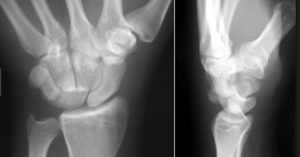 Perilunate dislocation. Note overlapping bones on AP view. On lateral view the capitate is posterior to the lunate and the lunate is in line with the radius.