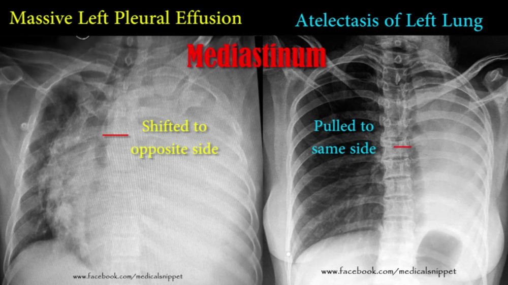 """Two things will """"white out"""" a lung, pleural effusion and atelectasis. Pleural effusion shifts mediastinum away from the affected lung. Atelectasis pulls mediastinum toward the affected lung."""