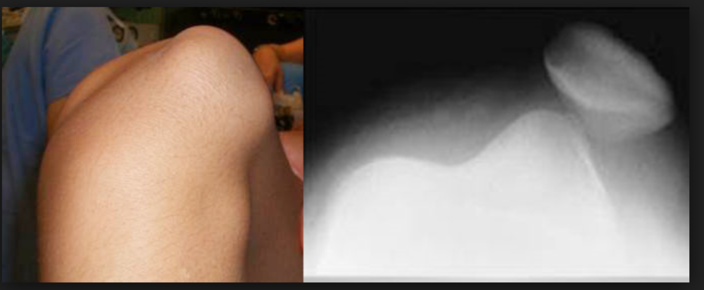 Patient's knee exam was as pictured. Xray confirmed lateral patellar dislocation.