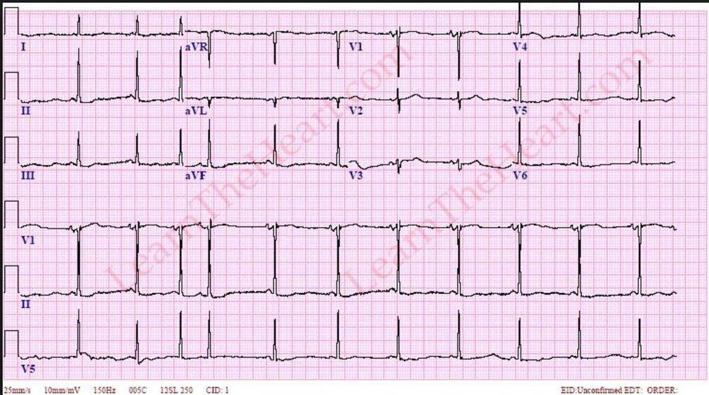 LGL EKG