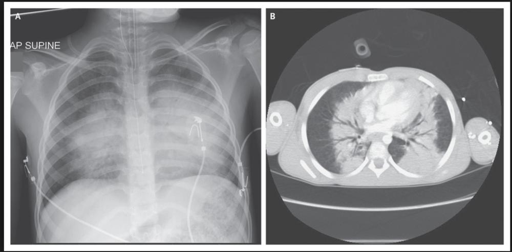 Imaging of blast lung injury
