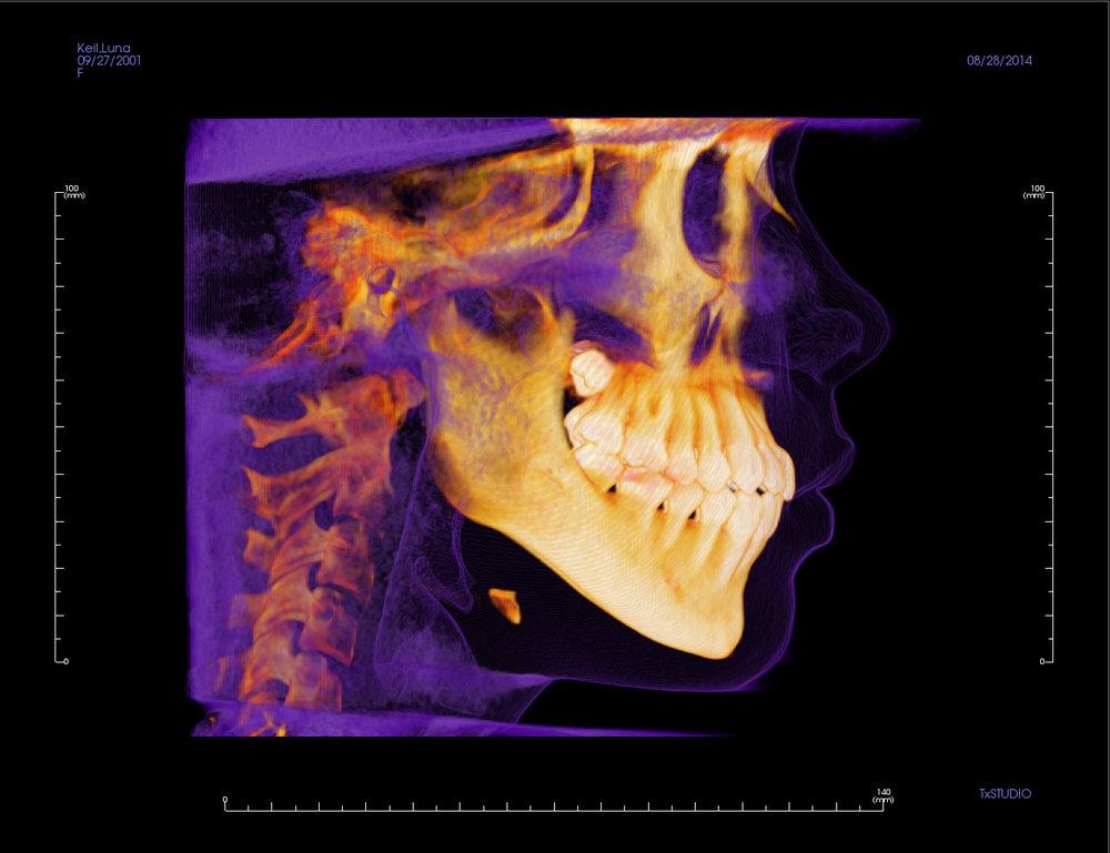 3D X-ray.jpg