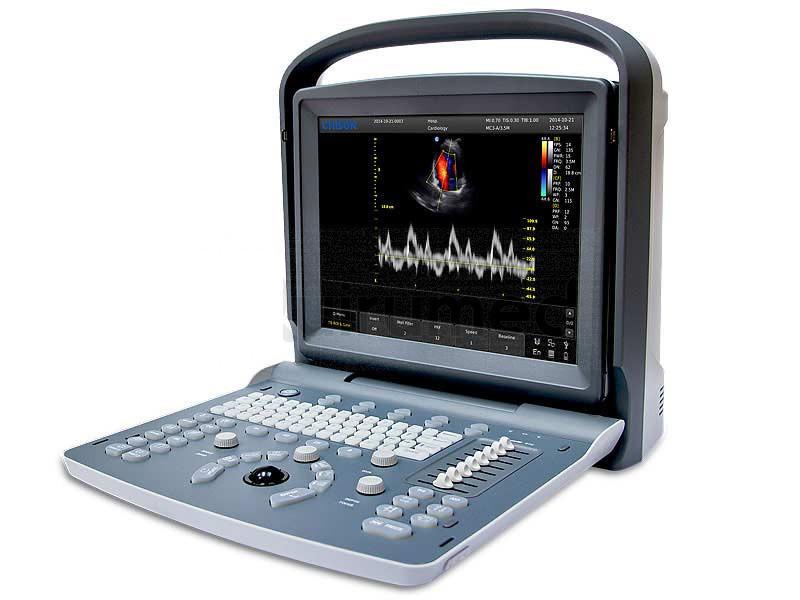 cheap portable ultrasound machine
