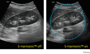 S-Harmonic ™  This new harmonic technology provides greater image uniformity from near to far field while reducing signal noise.