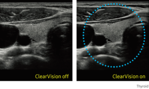 ClearVision   The noise reduction filter improves edge enhancement and creates sharper 2D images for optimal diagnostic performance.