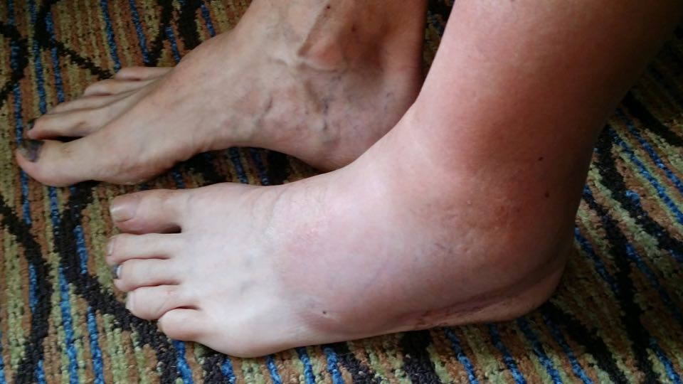 "Mysterious ""swelling"" the morning after the 100 miler. No bee sting, ankle roll, or other such incidence had occurred"