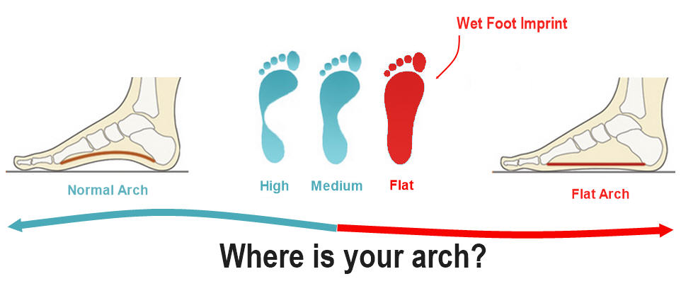 80% of people will experience foot pain during their life time. People who have  conditions such as plantar fasciitis 06f60e3ae04