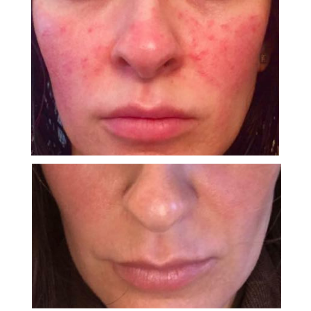 My Laser Genesis | Before + After - Series of 6 treatments with 1-2 touch-ups on cheek area.