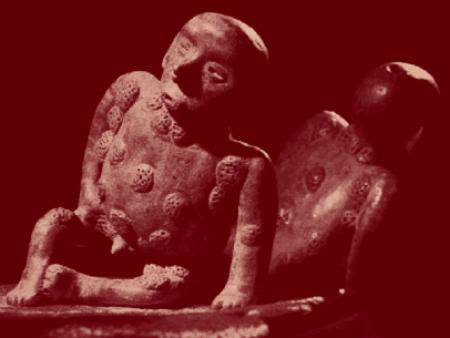 Epidémie de syphilis précolombienne.