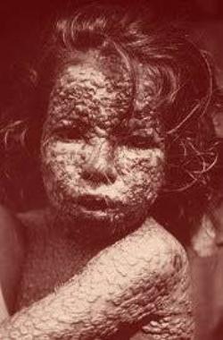 Enfant atteint de variole