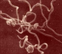 La Borrelia, spiralée, est une bactérie très rapide en milieu gel
