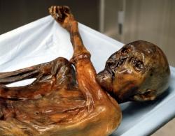 Ötzi Son bras a été replié par le mouvement des glaces.