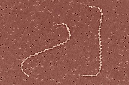 """Cette bactérie a besoin d'eau. Elle se déplace très rapidement """"à la façon d'un tire bouchon"""" C'est une cousine de la Borrelia médiatique (Lyme) et de l'indéboulonnable Tréponème de la Syphilis."""